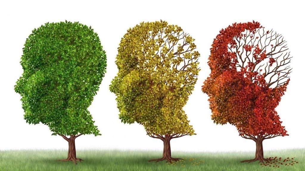 Nuevo tratamiento farmacológico en Alzheimer
