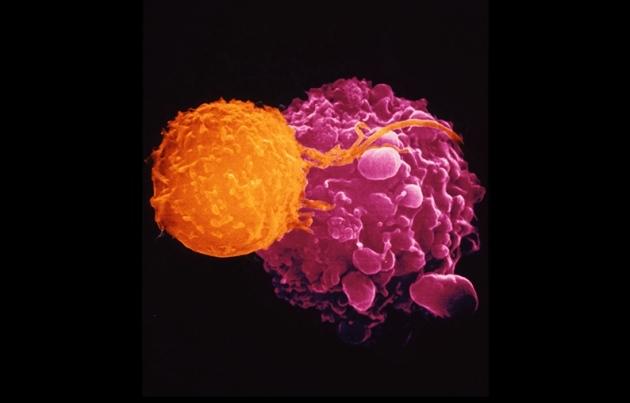 """Un virus anticáncer se ajusta al receptor tumoral como una """"llave en una cerradura"""""""