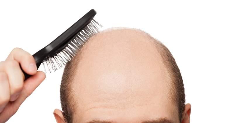 Un fármaco para el eccema, prometedor contra la alopecia